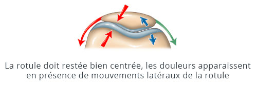 Douleurs liés à la rotule